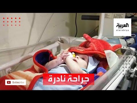 شاهد نجاح جراحة نادرة لرضيع مولود بتشوه خلقي في مأرب